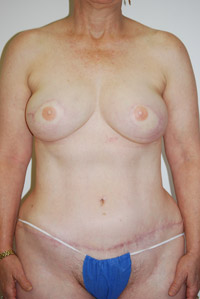 post-op-breast1