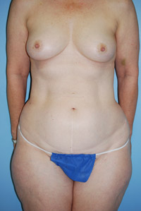 preop-breast1
